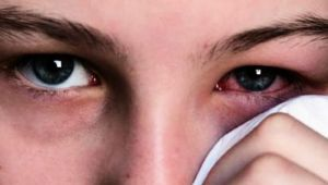 Prevent Conjunctivitis by these Home Remedies |