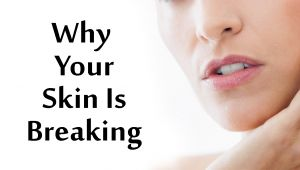 10 Surprising Reasons Why Your Skin Is Breaking Out | Boldsky
