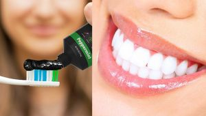 Charcoal Toothpaste Benefits & Demerits