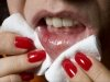 8 Common Causes Of Mouth Ulcers