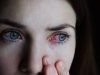 Conjunctivitis: Home Remedies For Quick Relief