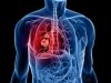 Lung Cancer Ups Suicide Risk In Men: Study