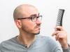 Remedies To Prevent Premature Baldness