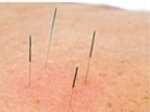 Acupuncture Provides No Help In IVF