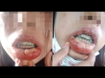 She Bought Fake Braces And Then This Happened!