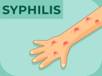 Syphilis: Causes, Symptoms, Diagnosis & Treatment