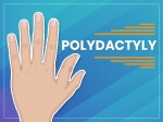 Polydactyly: Causes, Symptoms, Diagnosis And Treatment