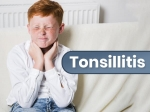 Tonsillitis: Causes, Types, Symptoms, Diagnosis And Treatment