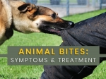 Animal Bite: Why Do They Bite? Symptoms, Complications, Diagnosis And Treatment