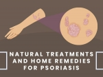 10 Natural Treatments And Home Remedies For Psoriasis Relief