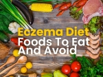 Eczema Diet: What Foods Should You Eat And Avoid