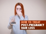 Postpartum Hair Loss: How To Deal With Hair Fall Post-Pregnancy