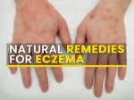 7 Effective Natural Remedies That Can Help Manage Eczema Symptoms