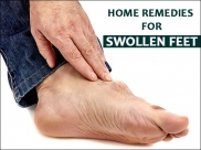 Got Swollen Feet? Then, Try These Effective Home Remedies