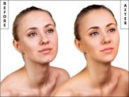 Ultimate Homemade Scrub For An Acne-prone Skin