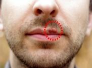 Ayurvedic Remedies For Herpes