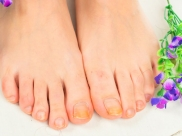 Fungal Infections: Causes And Prevention