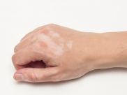 What Are The Reasons For White Patches On The Skin In Older Women?