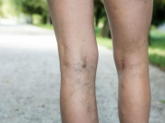 What Causes Varicose Veins During Pregnancy And How To Prevent It