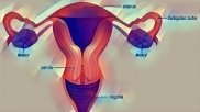 Endometrial Cancer: Causes, Symptoms, Diagnosis And Treatment