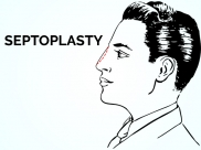 Everything You Need To Know About Septoplasty