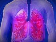 Bronchiectasis: Causes, Symptoms, Diagnosis And Treatment