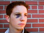 Black Eye: Causes, Symptoms, Diagnosis & Treatment