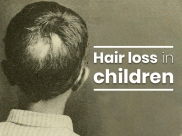 What Are The Common Conditions That Cause Hair Loss In Children?