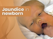 Jaundice In Newborns: Causes, Symptoms, Risk Factors, Diagnosis And Treatment