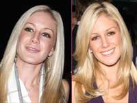 Heidi Montag, Before And After Cosmetic Surgery