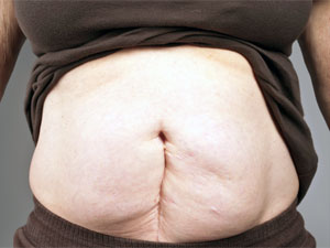 xfinity weight loss pill