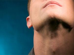Image of: Double Chin Exercises Boldskycom Double Chin Exercises To Lose Neck Fat Boldskycom