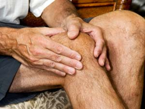 What Are The Symptoms Of Arthritis?
