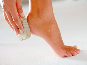 Have Cracked Heels? Try These...