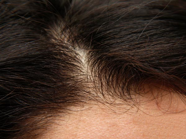How To Treat Scar Tissue In Scalp?