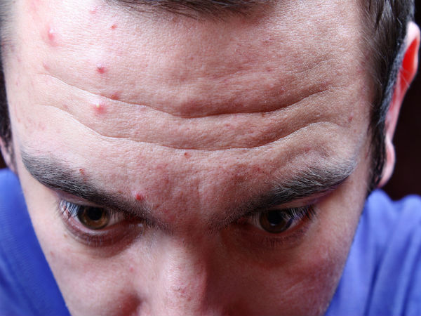 Ways To Prevent Forehead Acne In Men - Boldsky.com