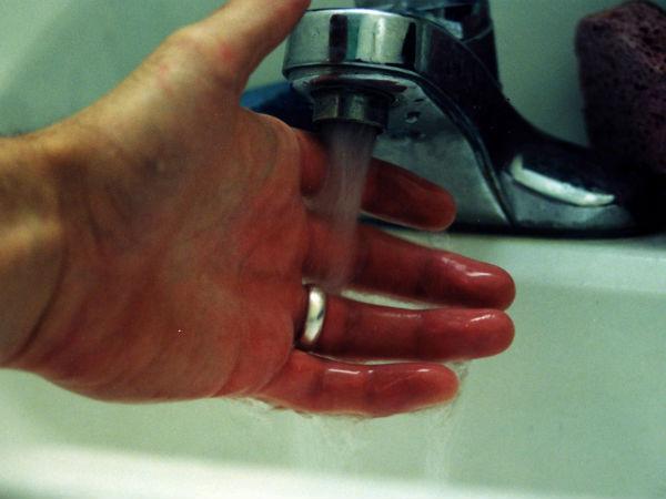 Home Remedies To Treat Skin Burns