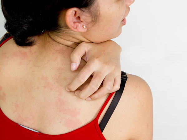 Will ivermectin cream kill scabies