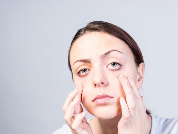 Causes And Symptoms Of Swollen Eyelids