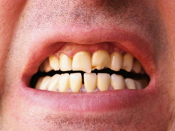 к чему снится челюсть с зубами выпала этапом