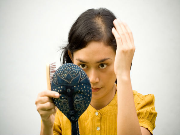 Photos About Women Thinning Hair