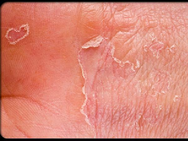 Пятна на теле и как их лечить