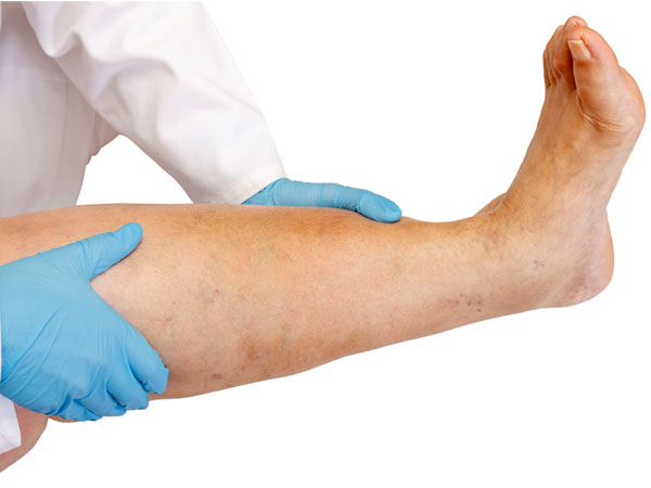 how to get your blood circulating in legs