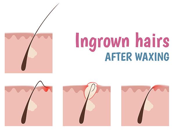 Basic Tips To Prevent Ingrown Hair Boldsky Com