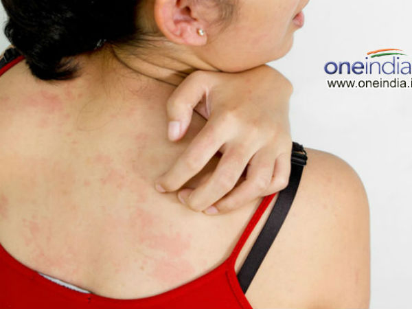 Home Remedies To Treat Scabies - Boldsky com