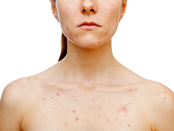Frightening Reasons Your Skin Is Breaking Out