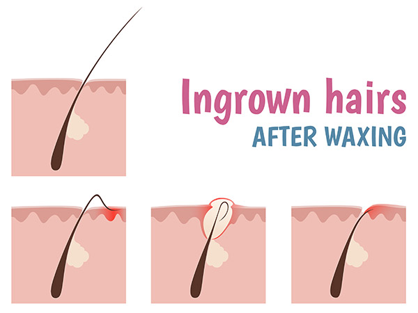 home remedies to get rid of ingrown hair. Black Bedroom Furniture Sets. Home Design Ideas