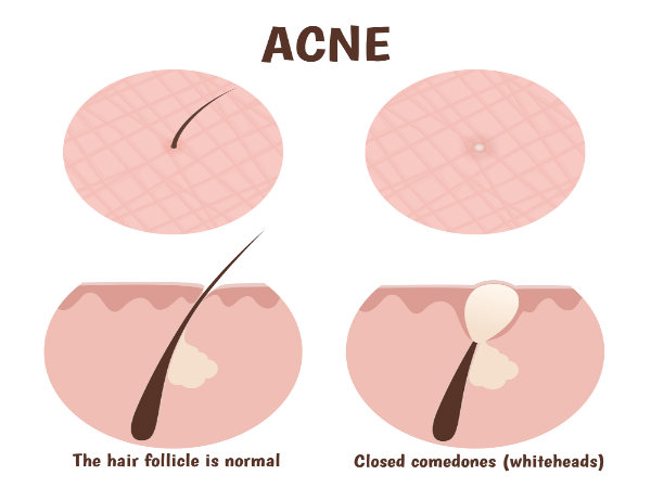 Tips To Get Rid of Whiteheads Faster