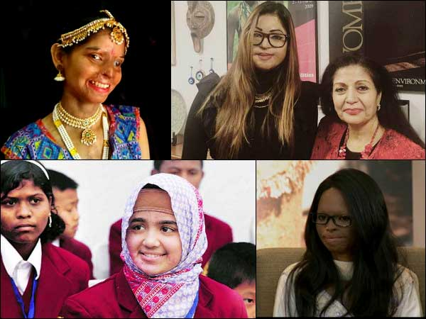 5 Acid Attack Victims Who Are Amazing In India