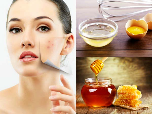 DIY Egg White And Honey For Reducing Ugly Spots On Face